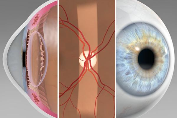 IKONION® Easy Eye TV Update: Neue 3D Animationen